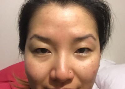 Customized Bio Peel - Day 4